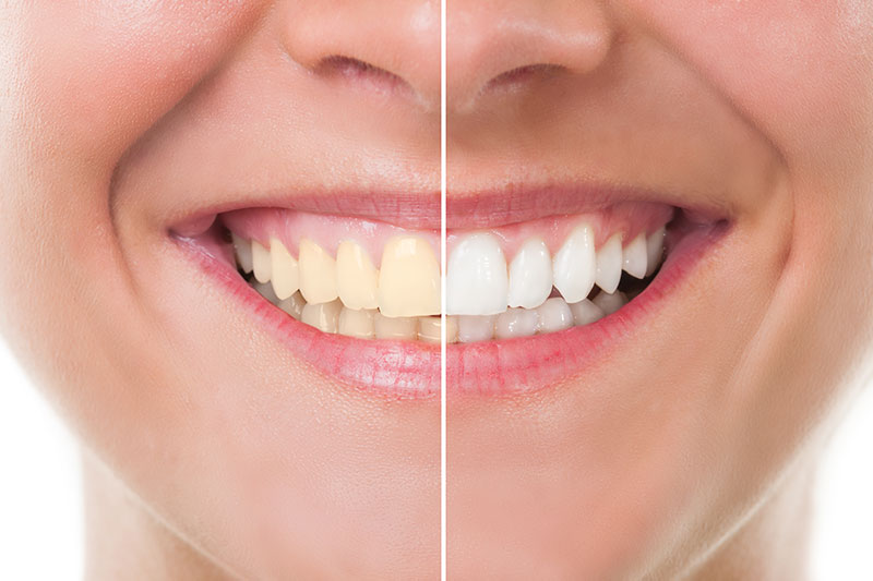 Teeth Whitening - Cosmetic & Family Dentistry, San Diego Dentist